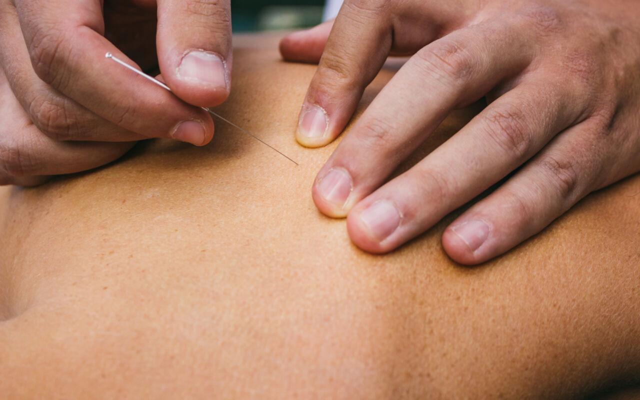 Pijnverlichting door dry needling